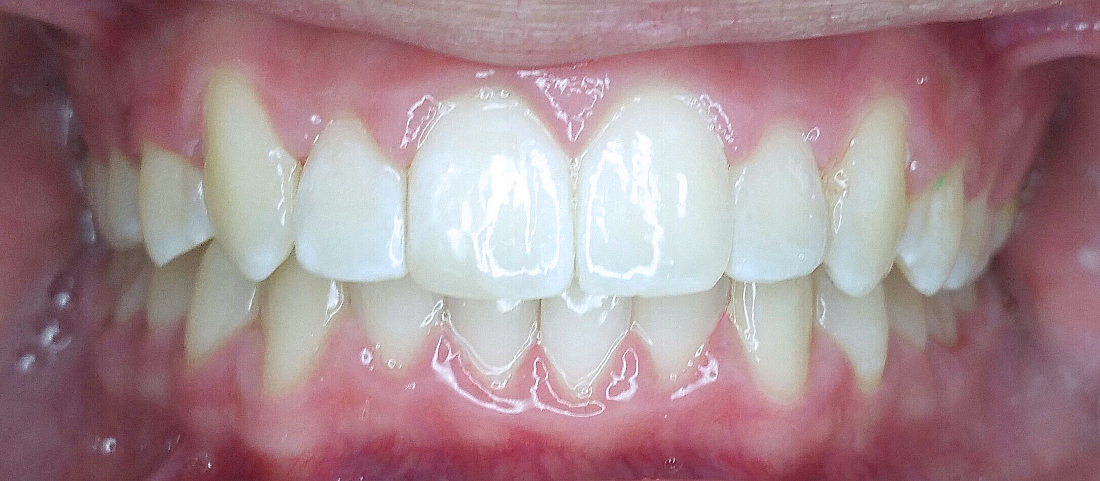 PowerProx 6-month Braces Case 1 after