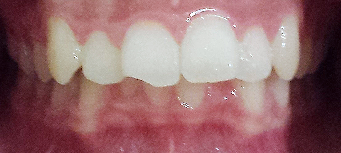 PowerProx 6-month Braces Case 1 Before