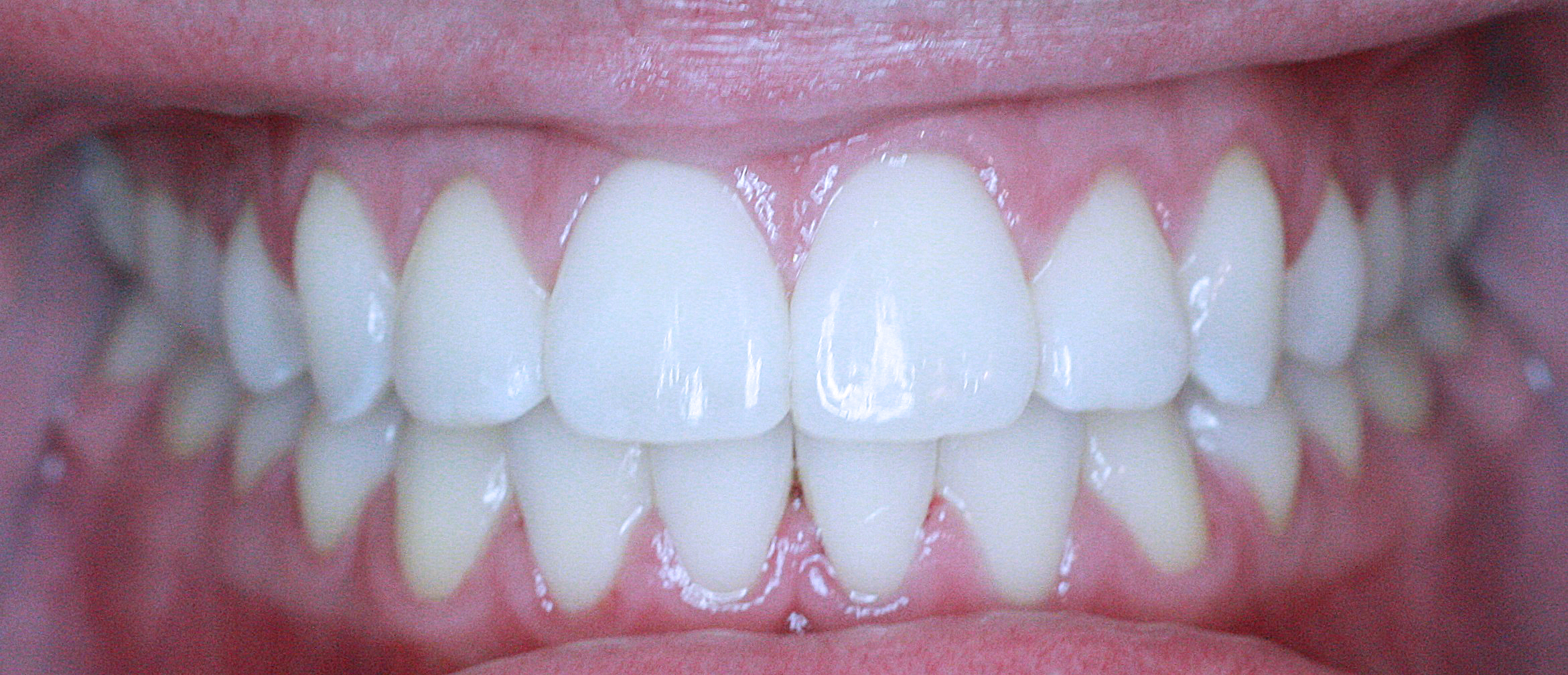 PowerProx 6-month Braces Case 2 after
