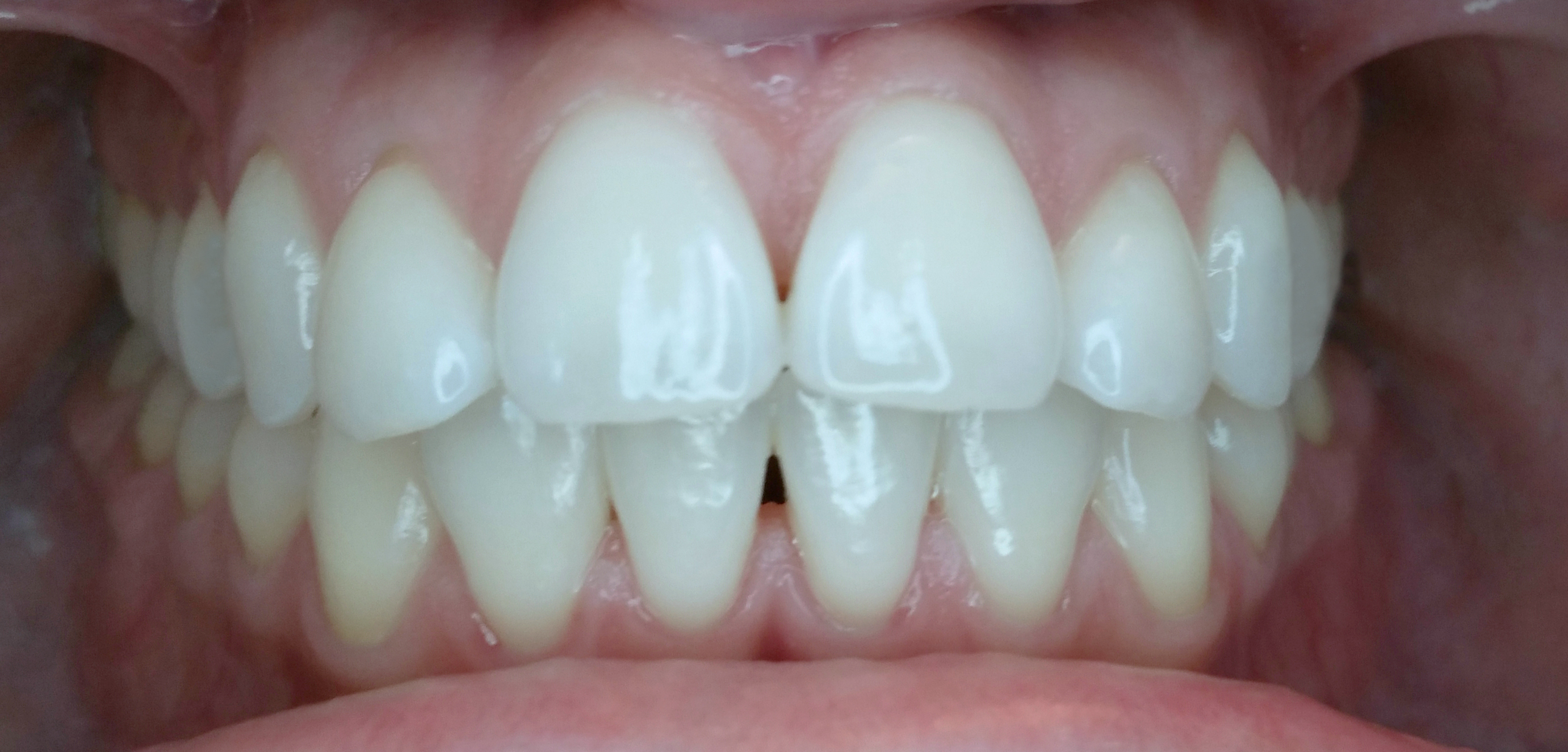 PowerProx 6-month Braces Case 2 Before