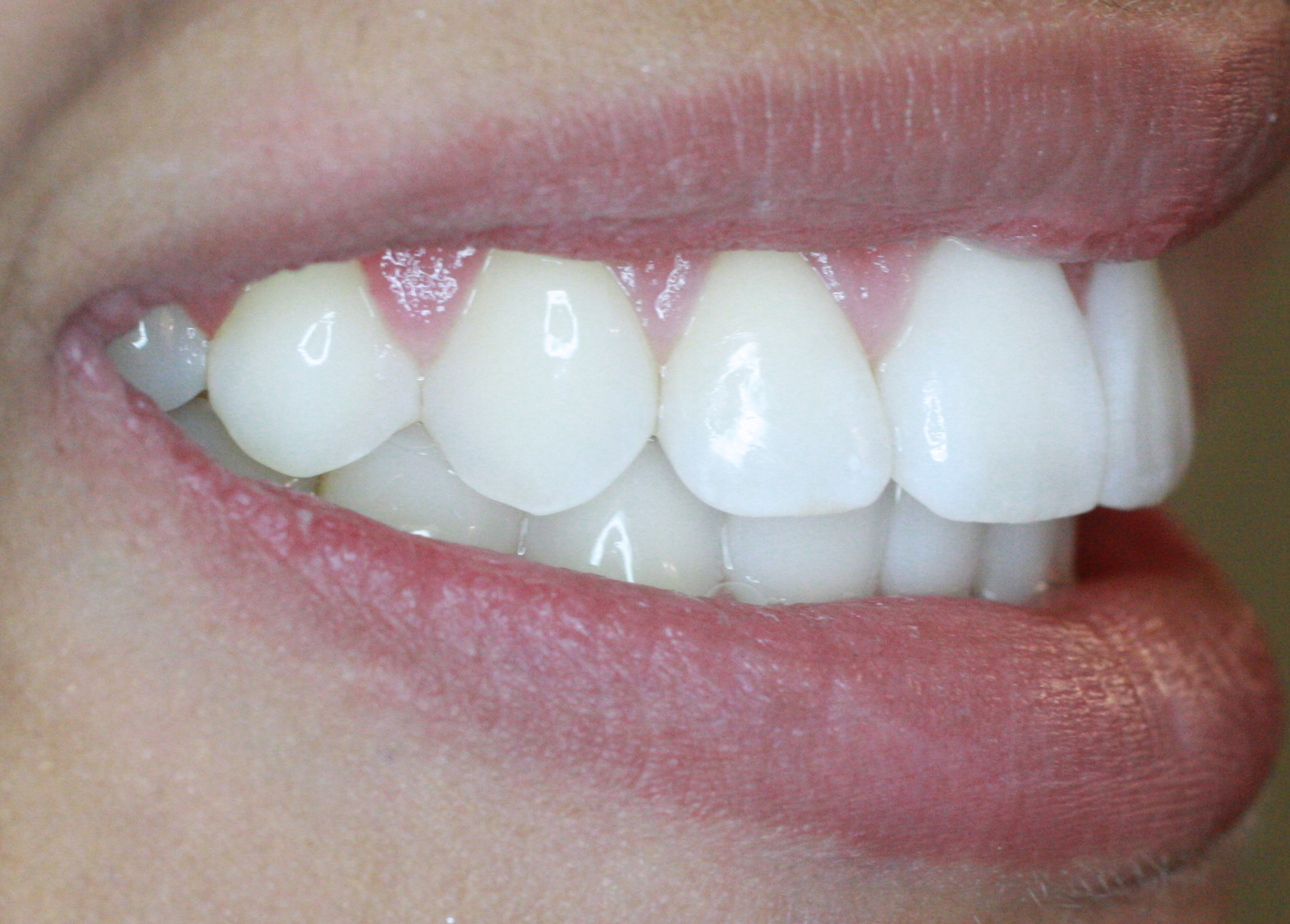 PowerProx 6-month Braces Case 3 after
