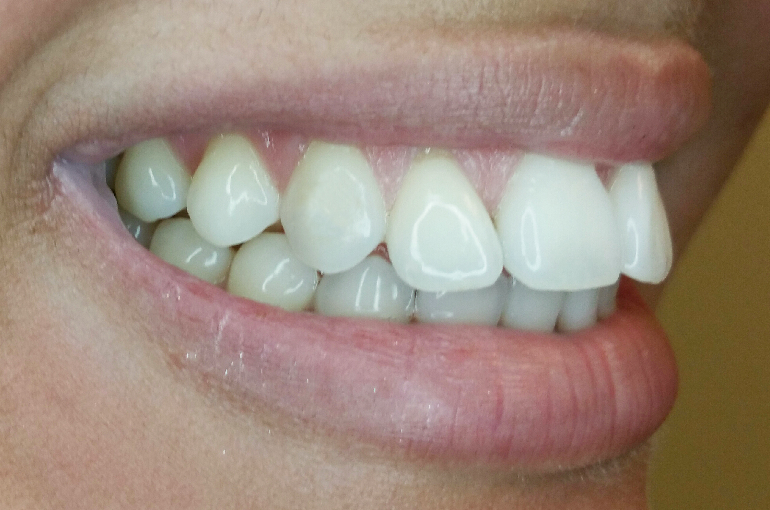 PowerProx 6-month Braces Case 3 Before