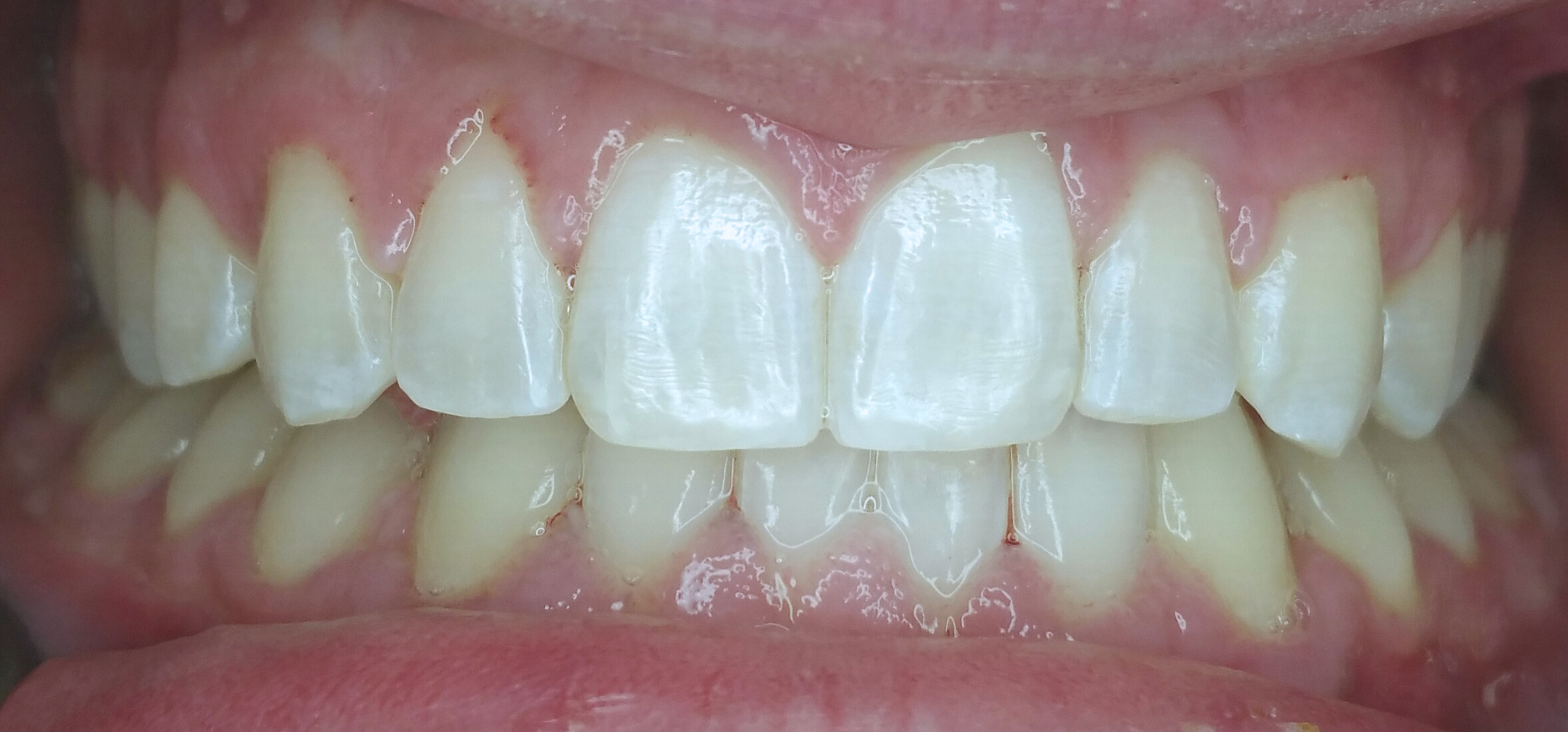 PowerProx 6-month Braces Case 4 after