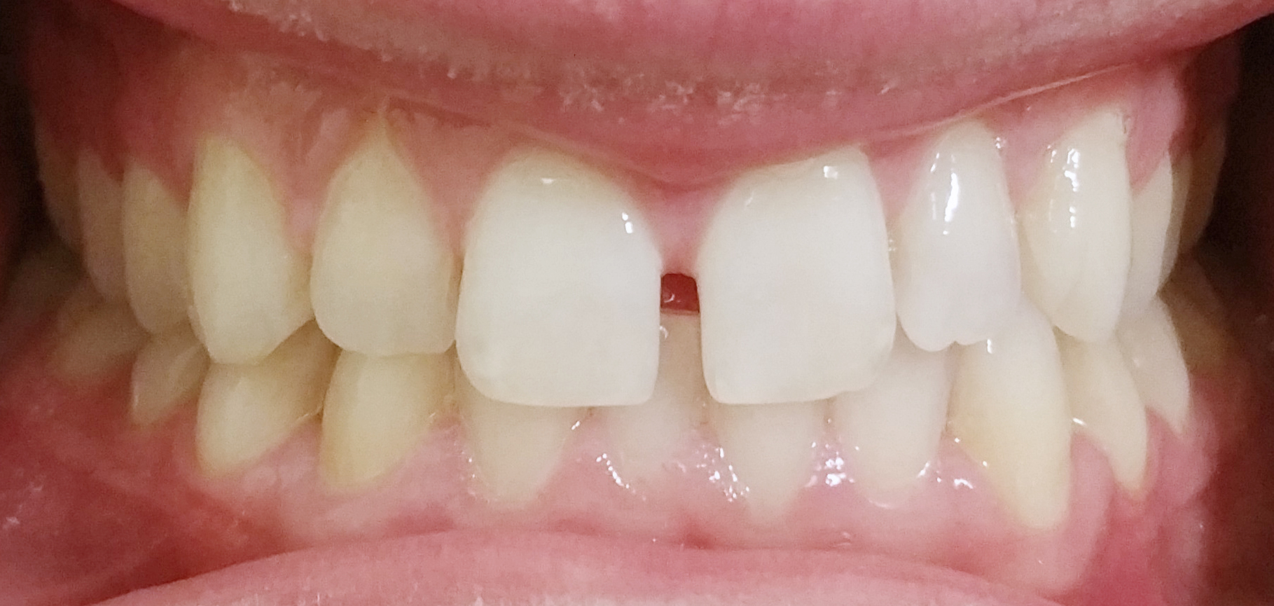 PowerProx 6-month Braces Case 4 Before