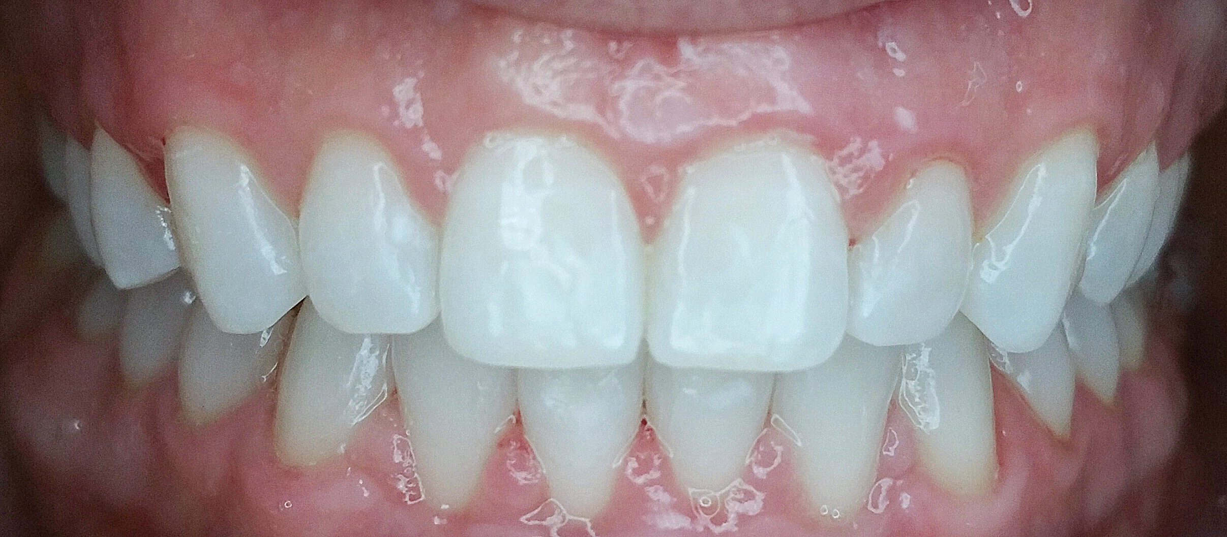 PowerProx 6-month Braces Case 5 after