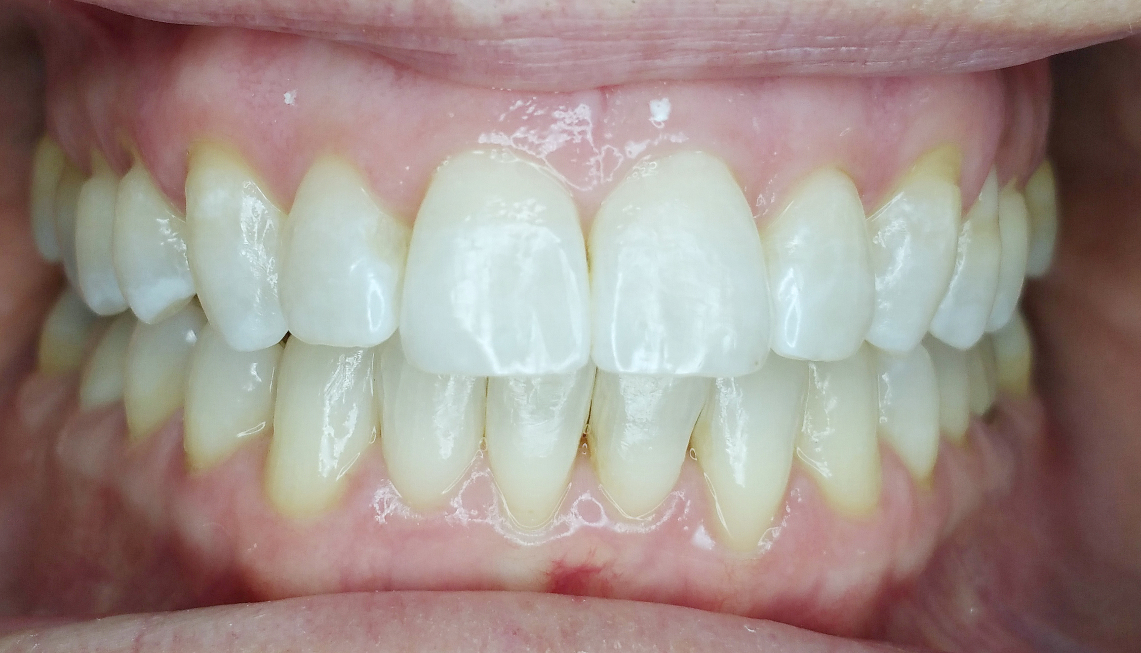 PowerProx 6-month Braces Case 6 after