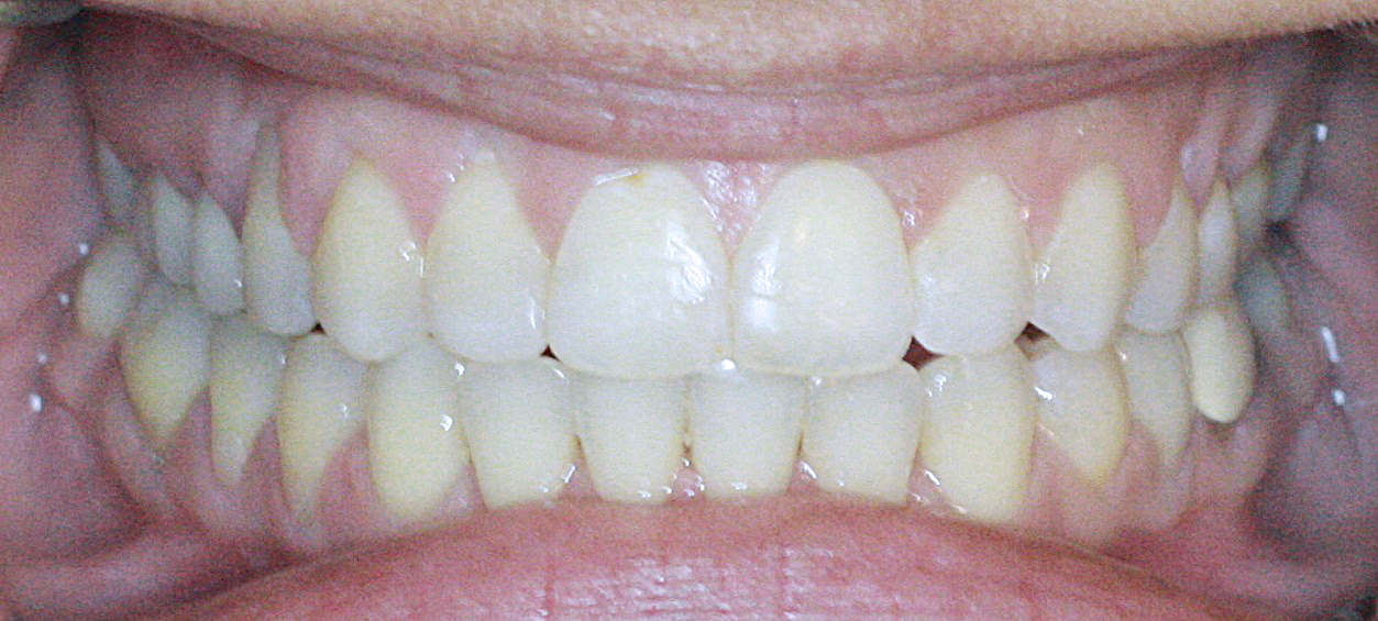 PowerProx 6-month Braces Case 7 after