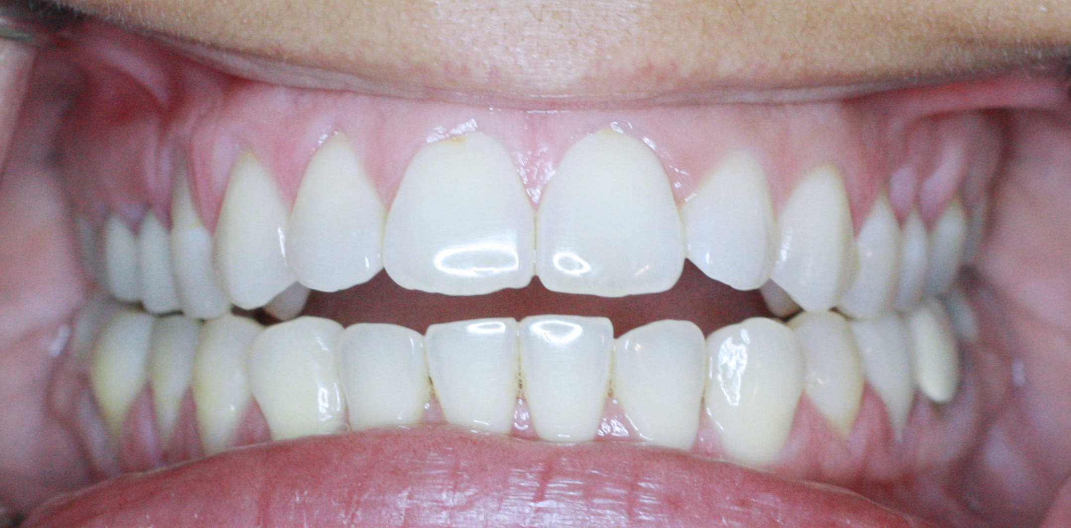 PowerProx 6-month Braces Case 7 Before