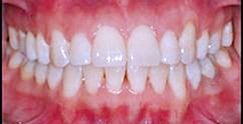 Invisalign Case 2 after