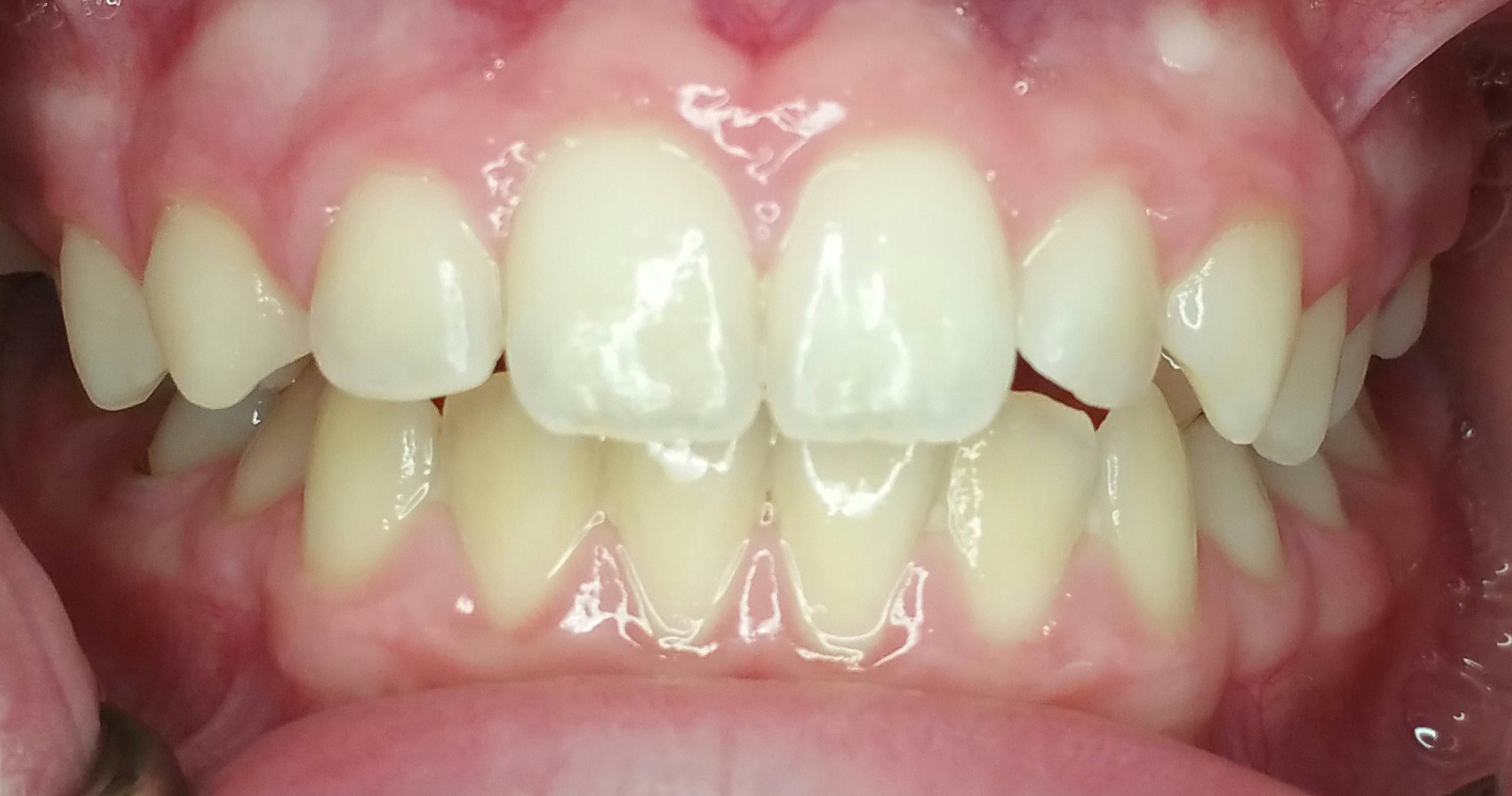 Invisalign Case 4 Before