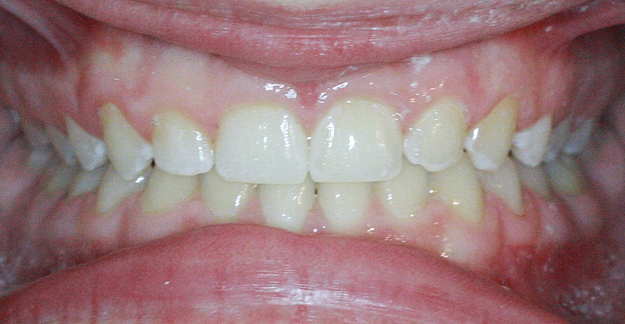 Invisalign Case 5 after
