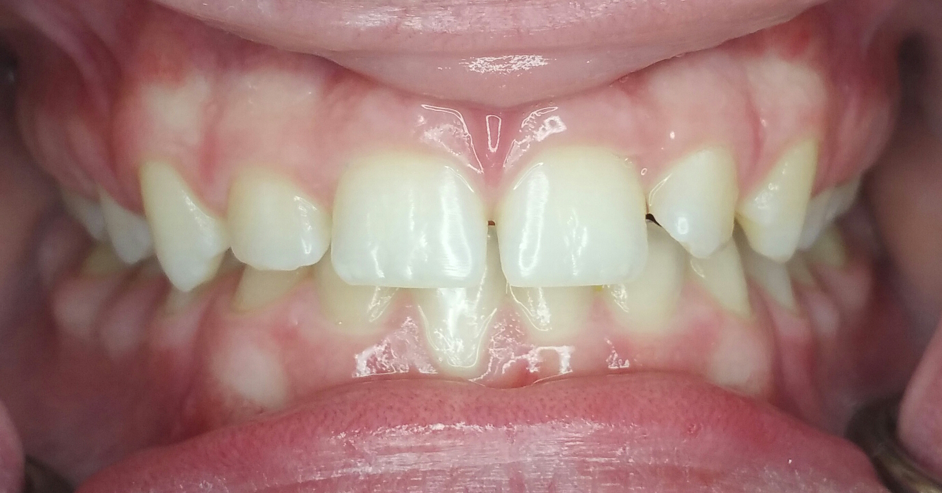 Invisalign Case 5 Before