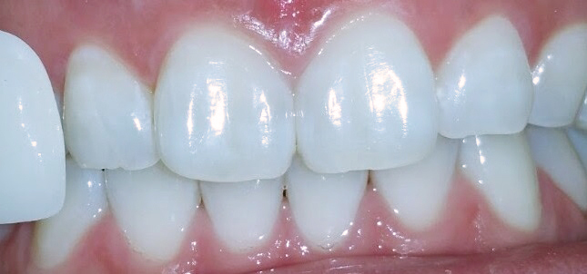 Whitening Case 1 after