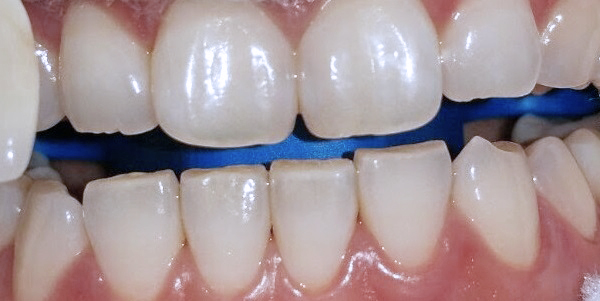 Whitening Case 1 Before