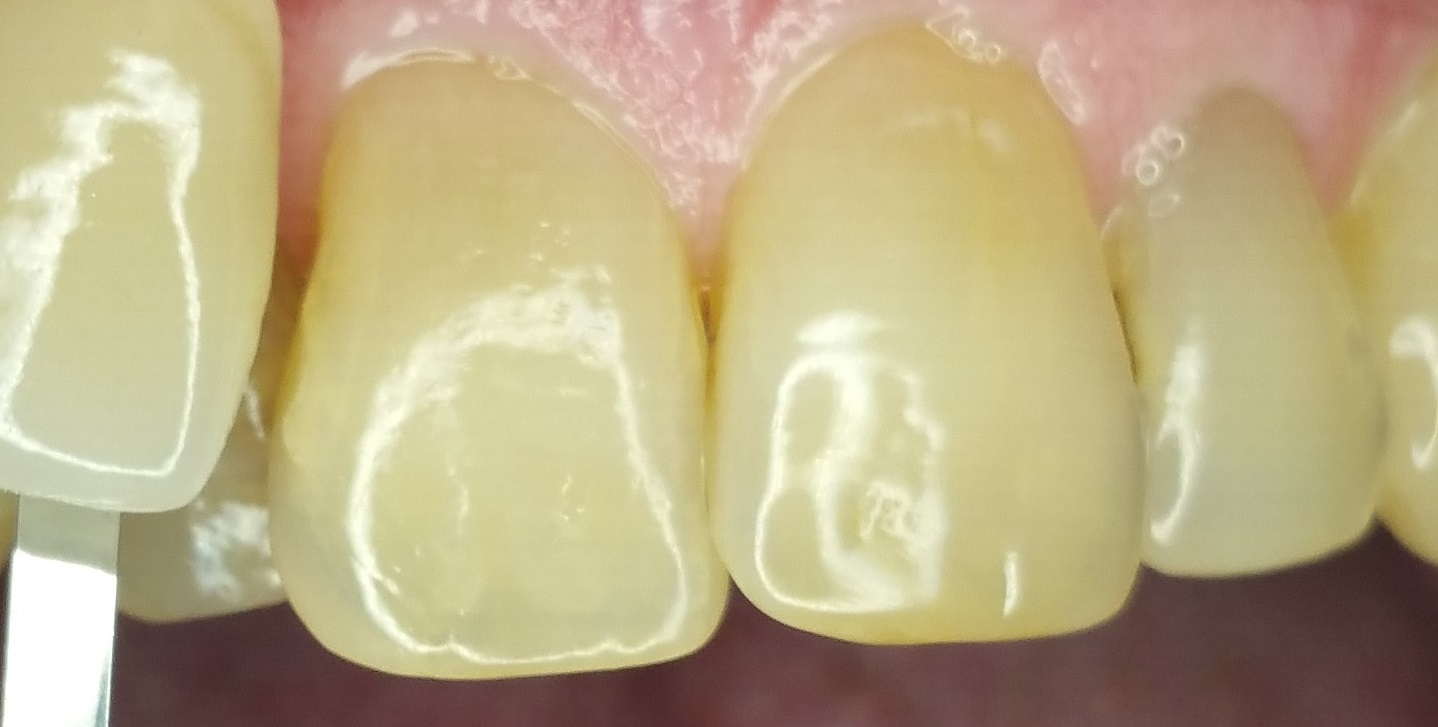 Whitening Case 2 Before