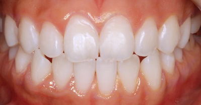 Whitening Case 3 after
