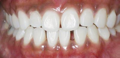 Whitening Case 4 after