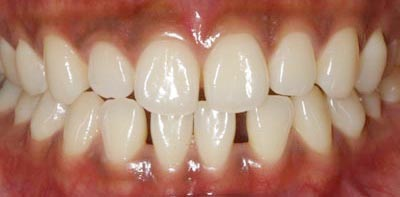 Whitening Case 4 Before